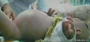Těhotné dvouleté dítě